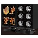 專業診斷醫療螢幕